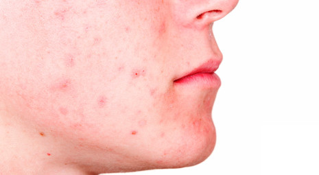 Acne in età adulta