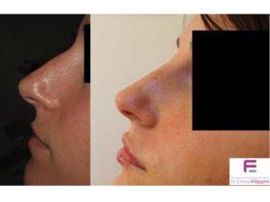 acido-ialuronico-naso-e-labbra