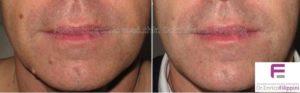 rimozione-fibromi-viso-frontale