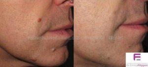 rimozione-fibromi-viso-laterale