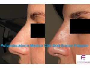 acido ialuronico per rimodellare il profilo del naso, senza chirurgia e senza dolore