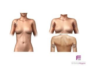 fili riassorbibili in pdo nel ringiovanimento delle braccia
