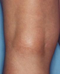 laser-capillari-gambe dopo