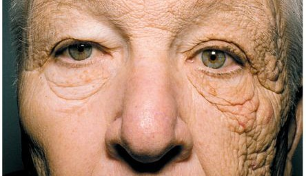 20120419 dermatoheliosis NEW ENGLAND JOURNAL OF MEDICINE