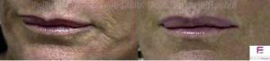 acido-ialuronico-labbra-e-basso-sorriso