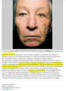 dermatoheliosis-unilateral-NEJM