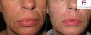 trattamento codice a barre delle labbra con plexer