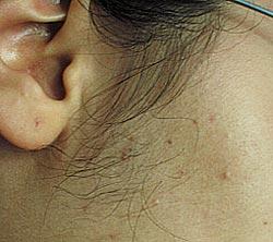 prima-della-terapia-laser-peli-viso