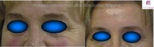 trattamento-con-botulino