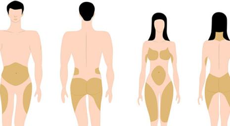 adiposità localizzate nell'uomo e nella donna