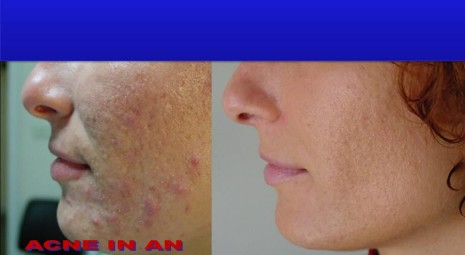 Cicatrici Da Acne e Brufoli: 14 Rimedi Naturali Per …