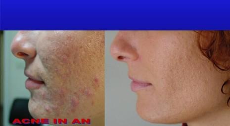 Acne e cicatrici da acne