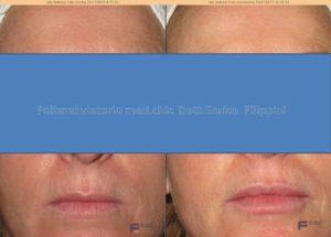 trattamento delle labbra e del codice a barre con acido ialuronico