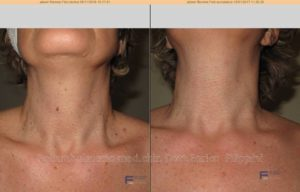 trattamento plexer per la rimozione di fibromini del collo. prima e dopo una seduta