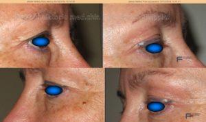 trattamento plexer palpebra superiore. prima e dopo una seduta