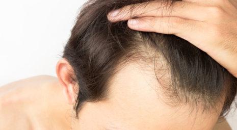 ricrescita capelli