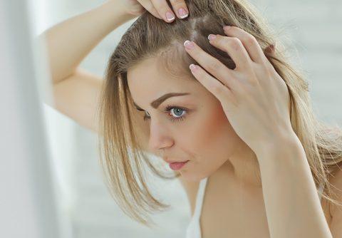 cura alopecia femminile
