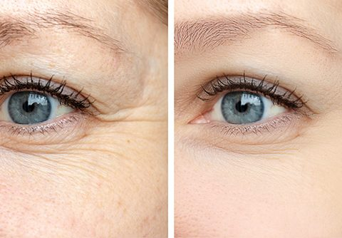 vantaggi biostimolazione contro invecchiamento della pelle