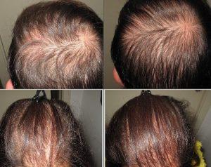 Ormoni_perdita_capelli