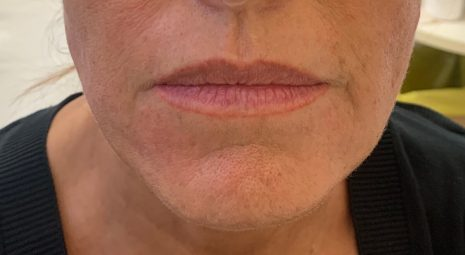 dopo-biostimolazione-viso-peptidi (1)